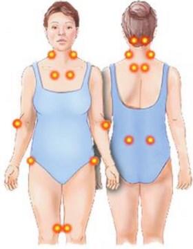 como-saber-si-tengo-fibromialgia