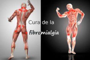 puntos-gatillo-fibromialgia